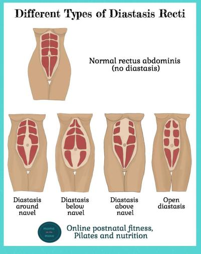 different-types-of-diatasis-recti